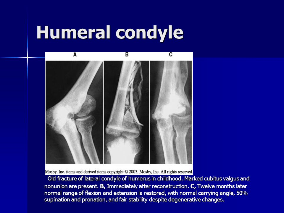 Humerus cont. Large defect in distal metaphysis of humerus after open fracture with separation of large segment of bone. B, Twenty months after bridgi