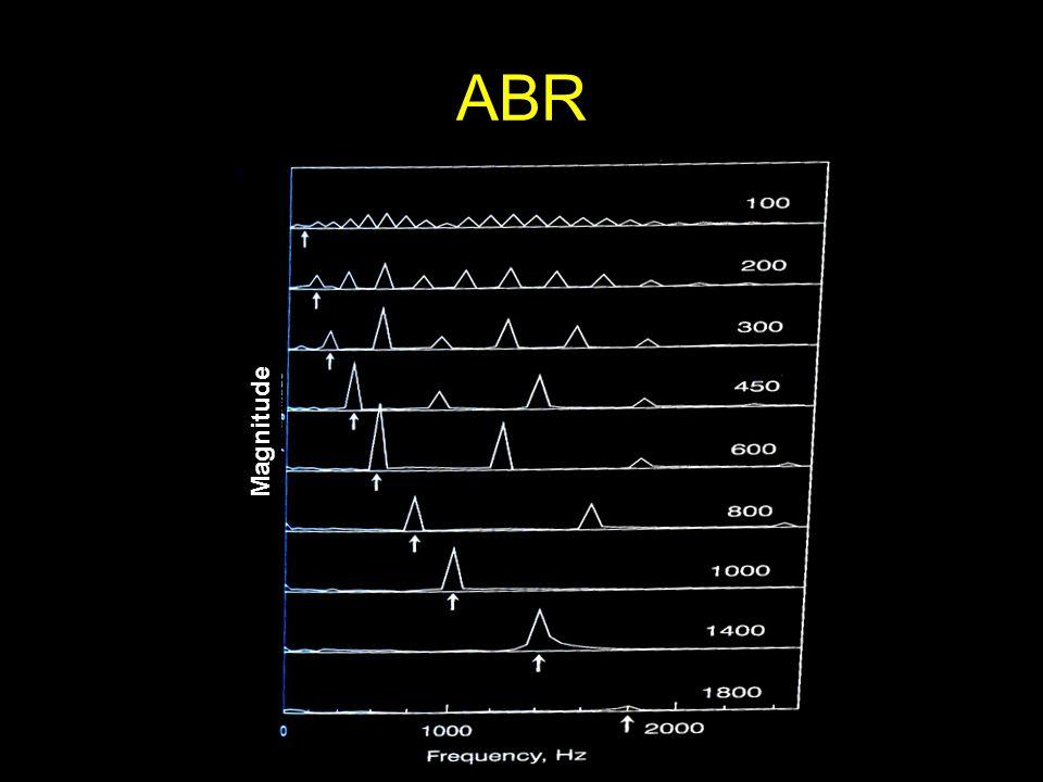 ABR Magnitude