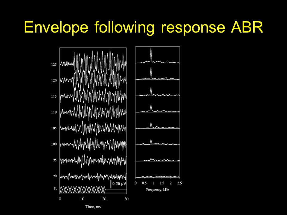 Envelope following response ABR