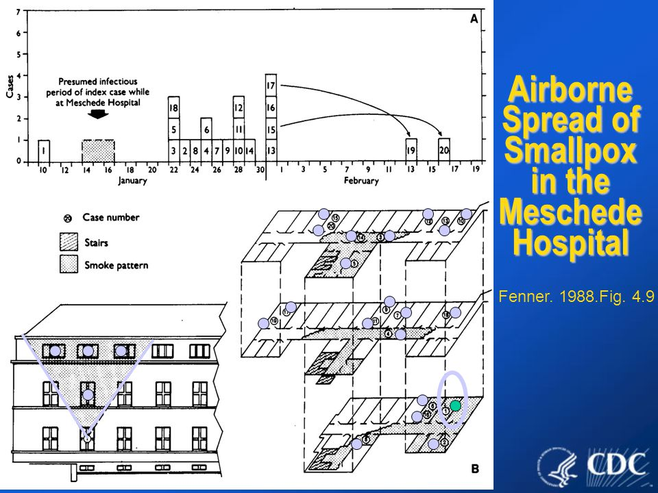 Airborne Spread of Smallpox in the Meschede Hospital Fenner. 1988.Fig. 4.9