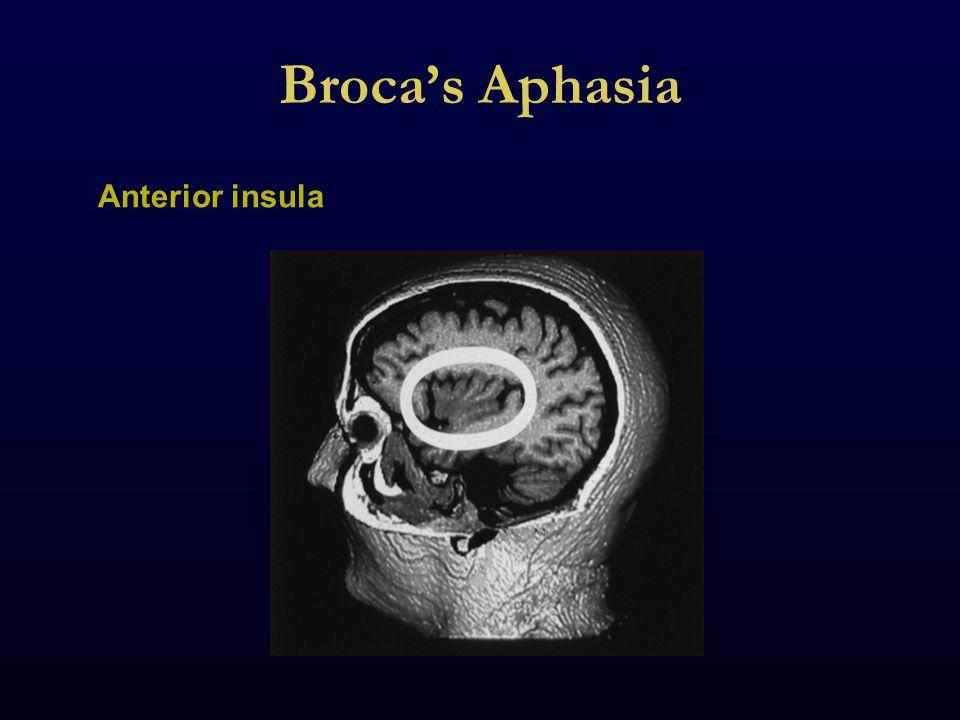 Broca's Aphasia Anterior insula