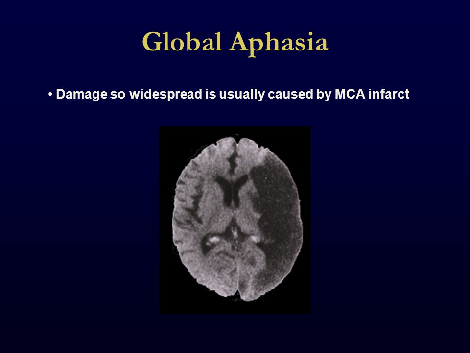 Global Aphasia Damage so widespread is usually caused by MCA infarct