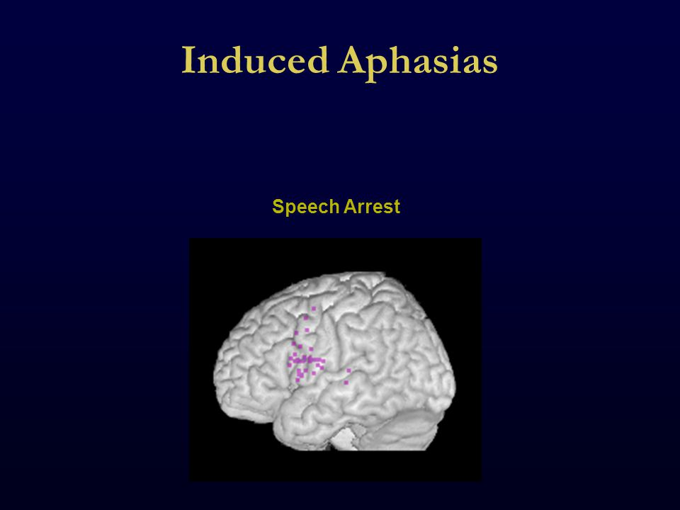 Induced Aphasias Speech Arrest