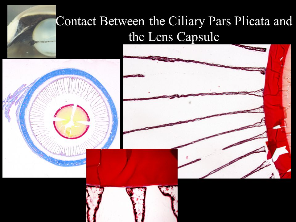 Contact Between the Ciliary Pars Plicata and the Lens Capsule