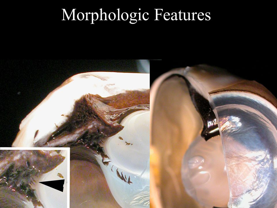 Morphologic Features