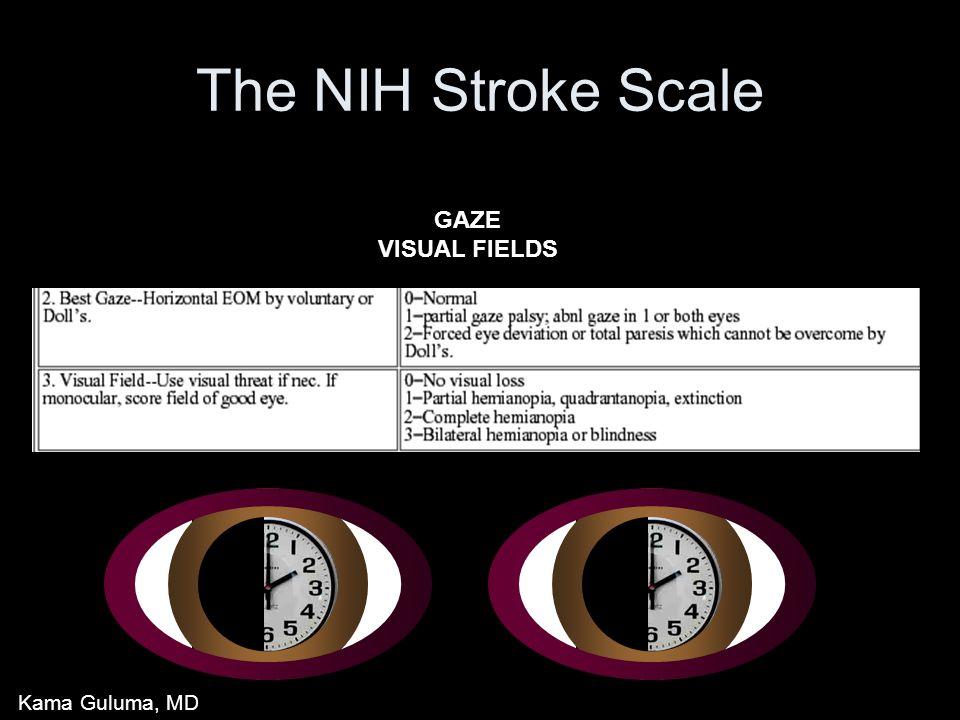 The NIH Stroke Scale GAZE VISUAL FIELDS Kama Guluma, MD