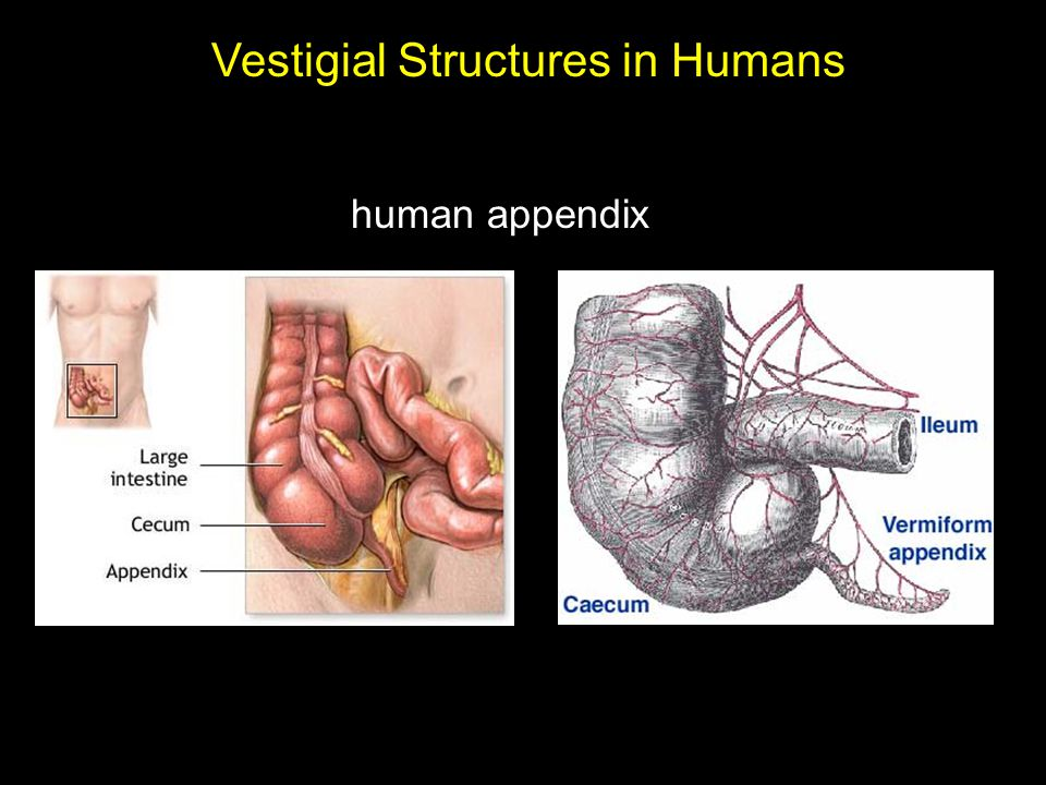 human appendix