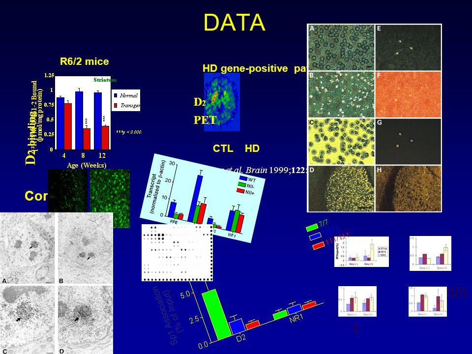 DATA R6/2 mice Andrews et al.