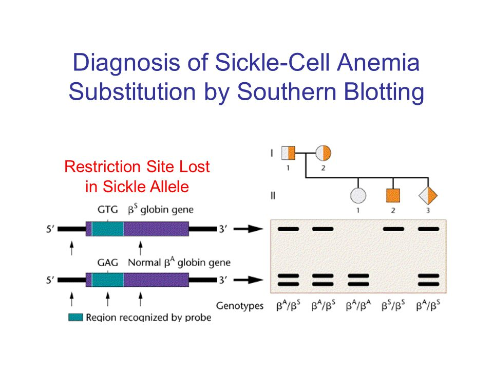 Diagnosis of Sickle-Cell Anemia Substitution by Southern Blotting Restriction Site Lost in Sickle Allele