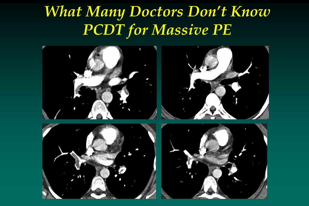 What Many Doctors Don't Know PCDT for Massive PE