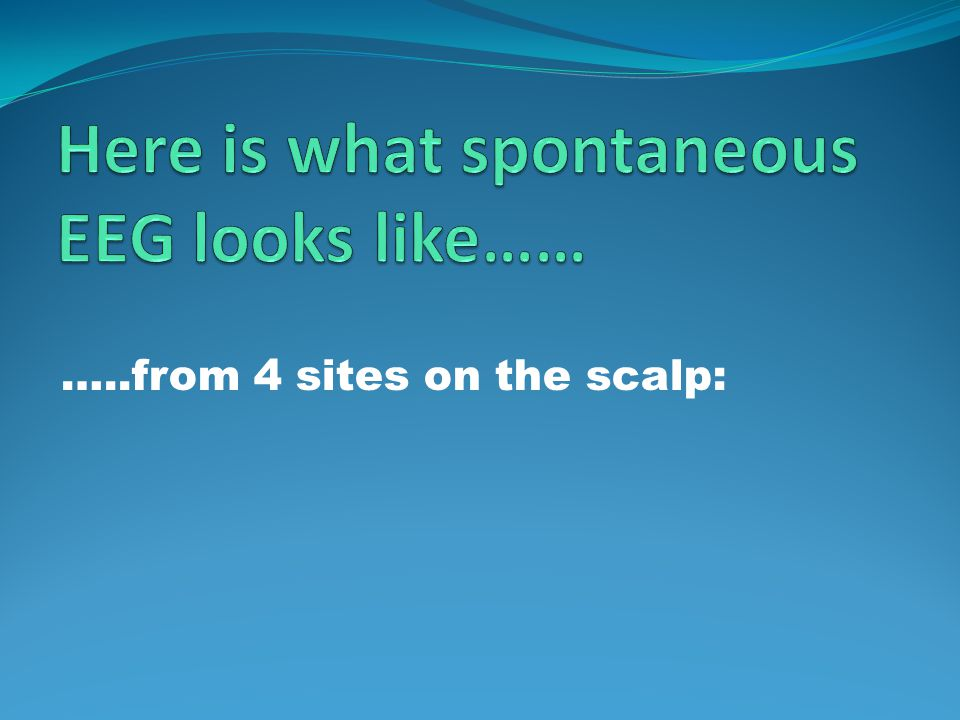 …..from 4 sites on the scalp: