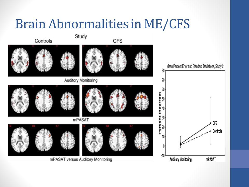 Brain Abnormalities in ME/CFS