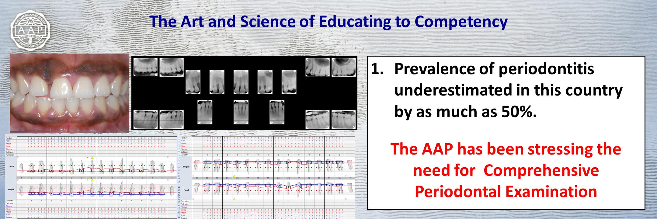 The Art and Science of Educating to Competency 1.Prevalence of periodontitis underestimated in this country by as much as 50%. The AAP has been stress