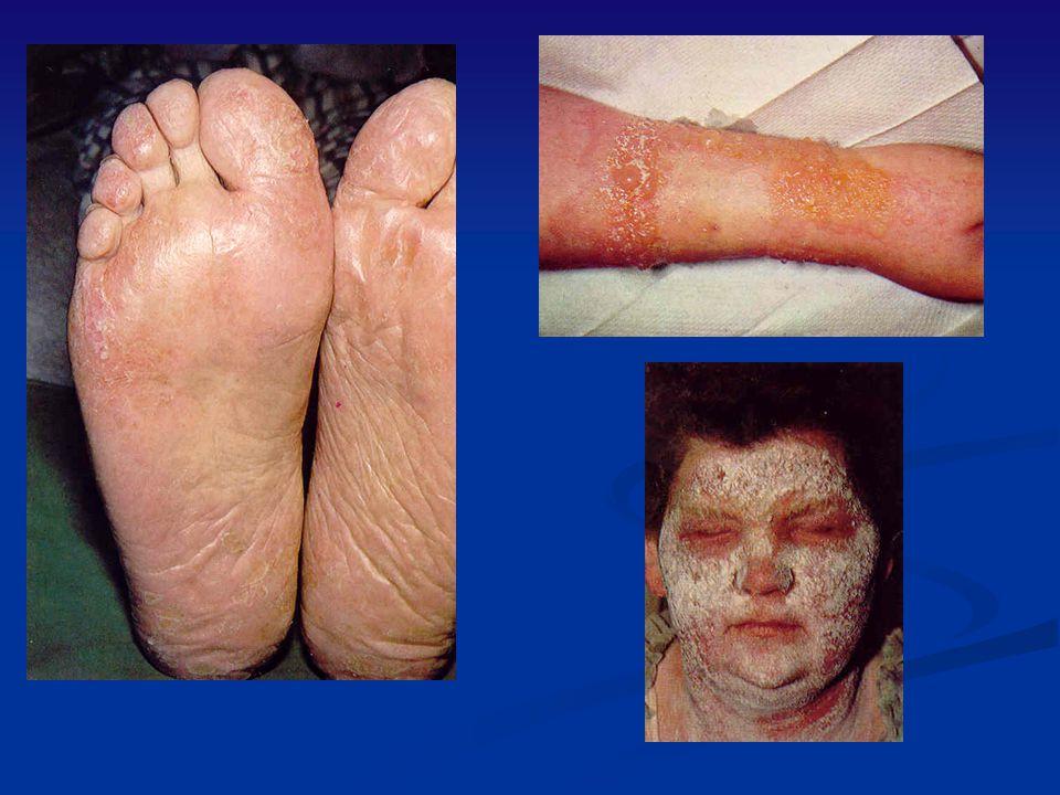 Identify Acute-Chronic; Allergic,Atopic, Toxic/Irritant