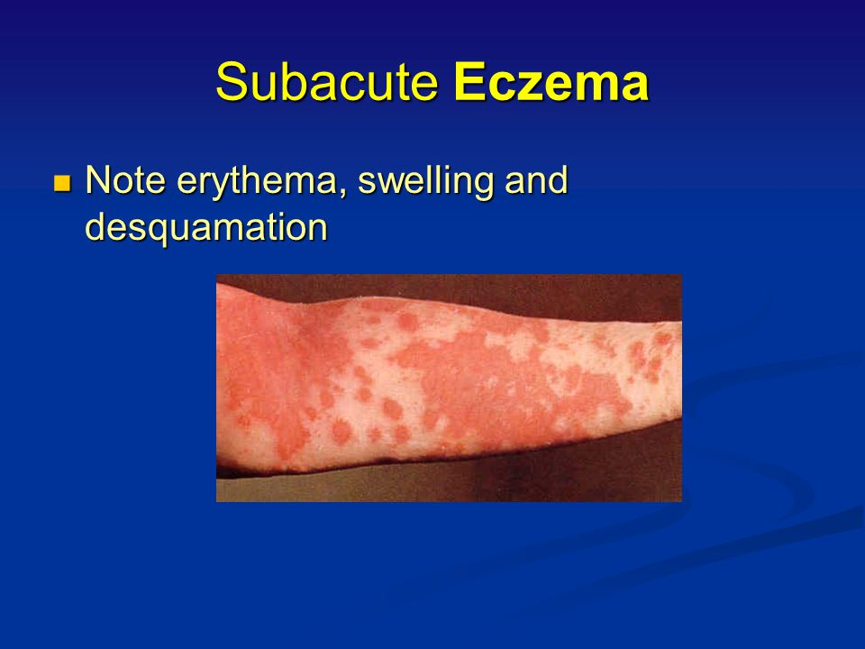 Characteristics of Subacute Eczema Plaques of mild erythema with small dry scales and or superficial desquamation, sometimes associated with small red