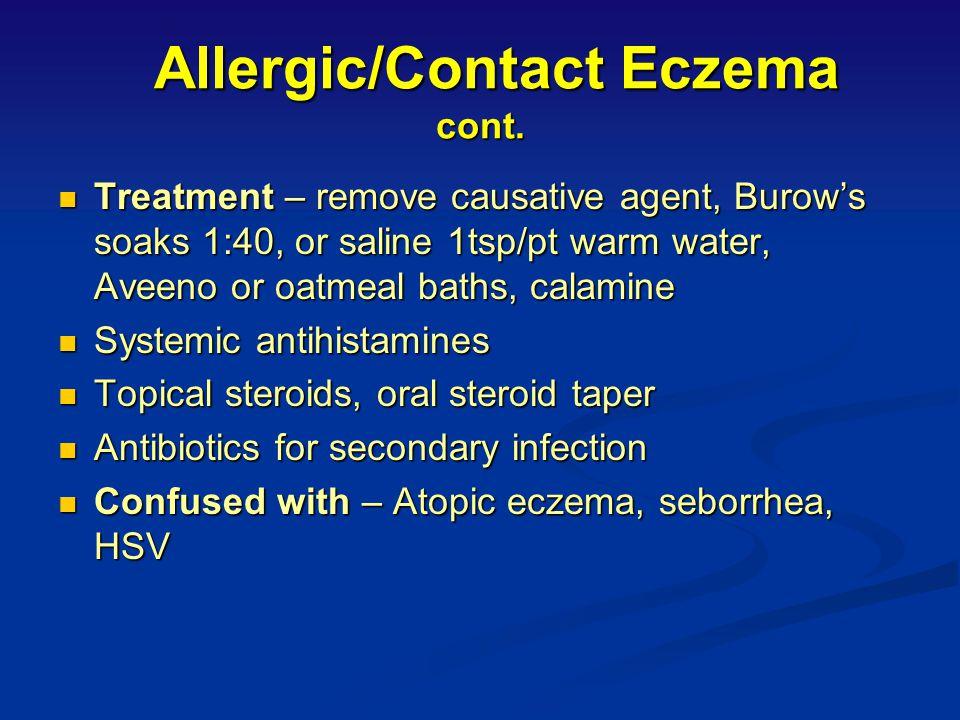 Causes of Allergic/Contact Eczema Metals- nickel, platinum (10% of women) Metals- nickel, platinum (10% of women) Detergents Detergents Plants and fib
