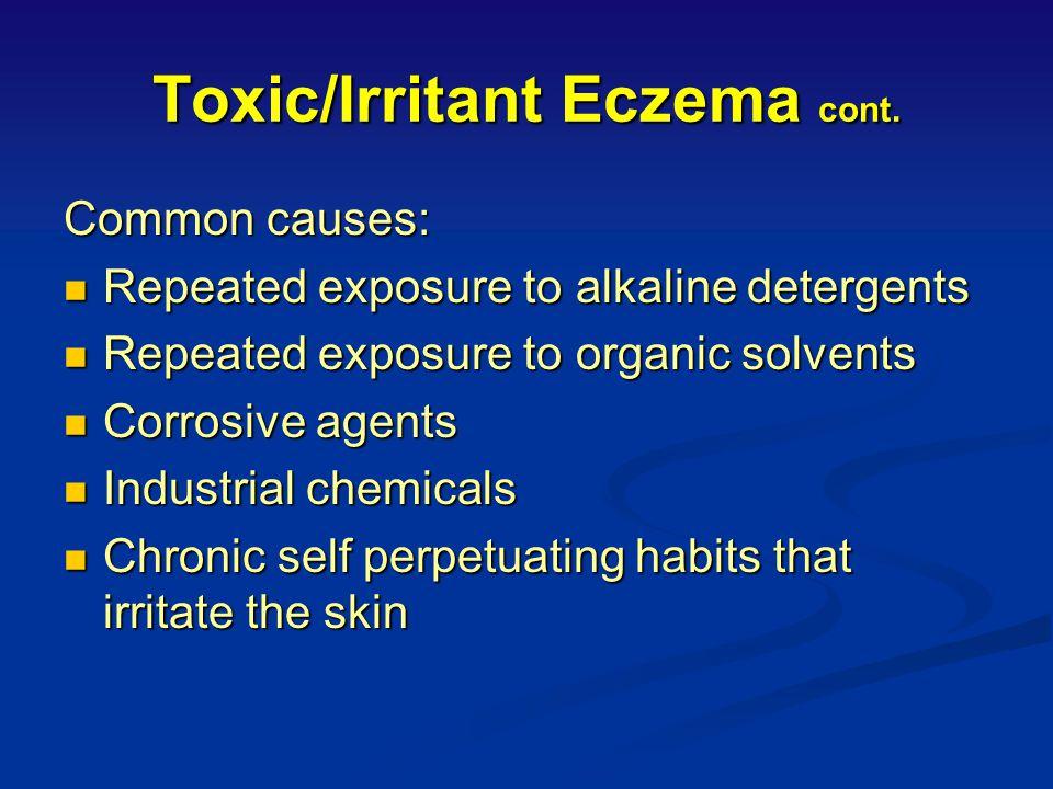 Toxic / Irritant Eczema (occurring in non allergic skin) Characteristics: Characteristics: Accounts for 75% of exogenous eczema Accounts for 75% of ex