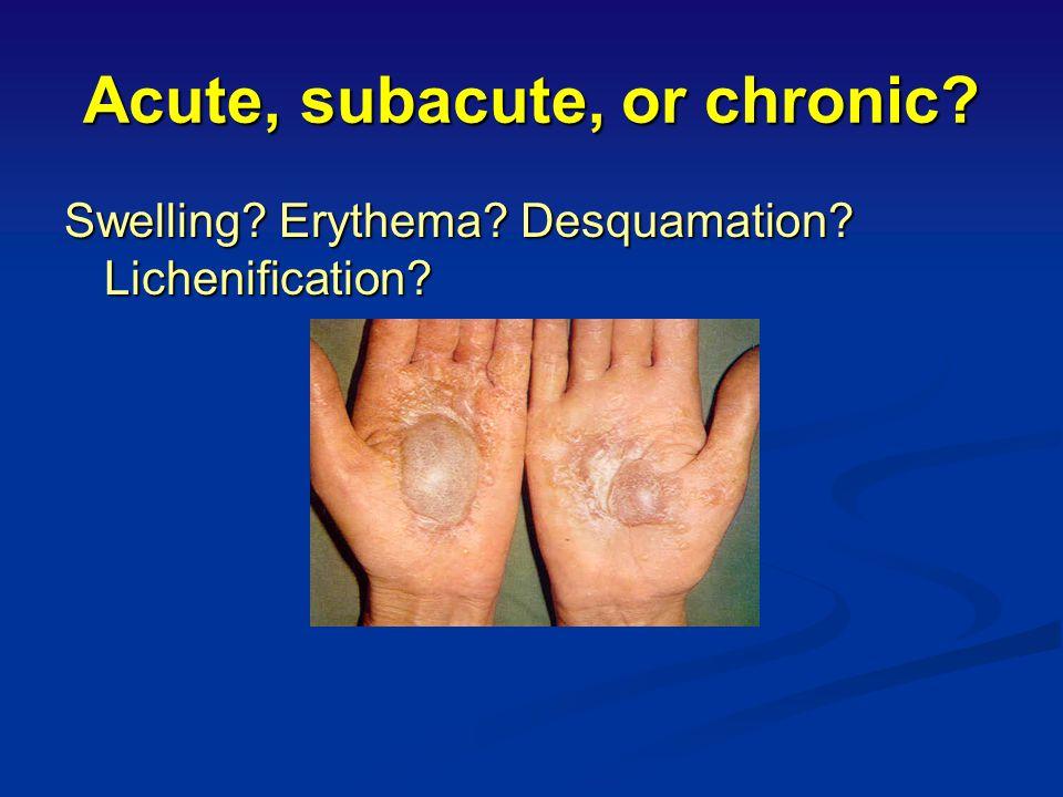 Chronic Toxic/Irritant Eczema Note:papulosquamous dermatosis with hyperkeratosis, maceration, fissuring and erosions Note:papulosquamous dermatosis wi