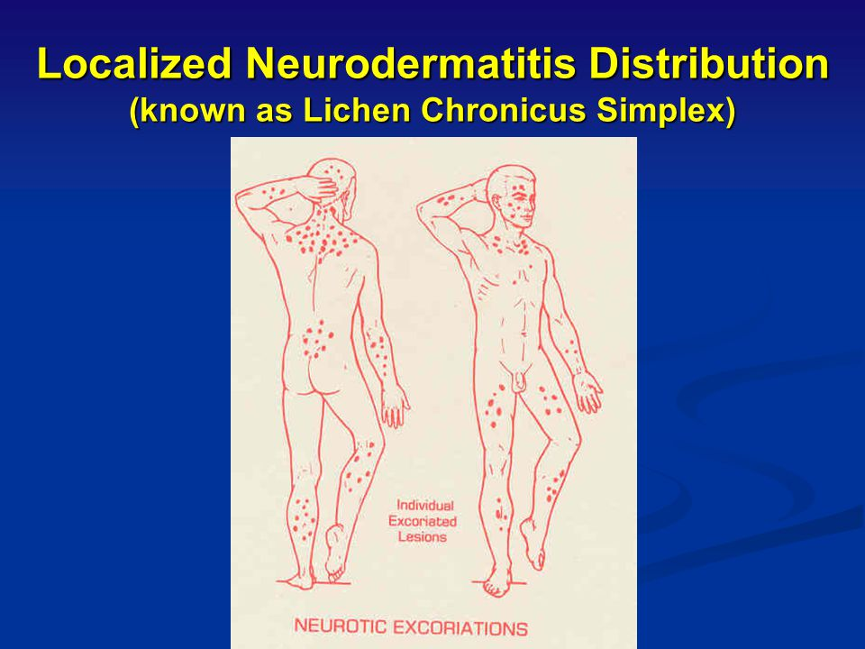 Localized Neurodermatitis (known as Lichen Chronicus Simplex) CONT. Distinctive Characteristics: Lesions lichenified or excoriated Lesions lichenified