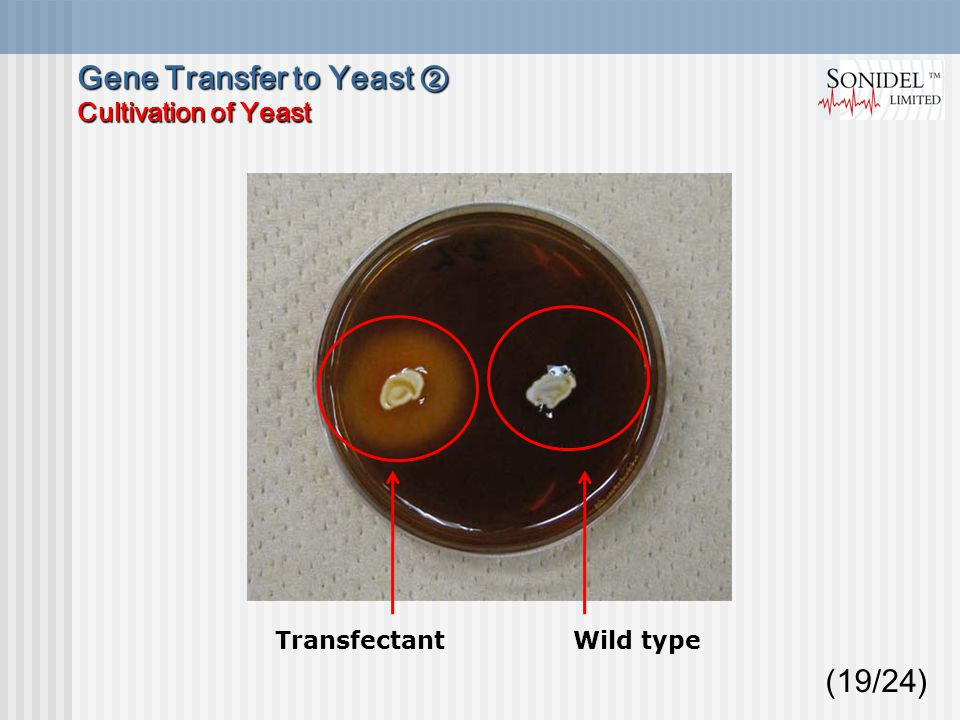 (19/24) Transfectant Wild type Gene Transfer to Yeast ② Cultivation of Yeast
