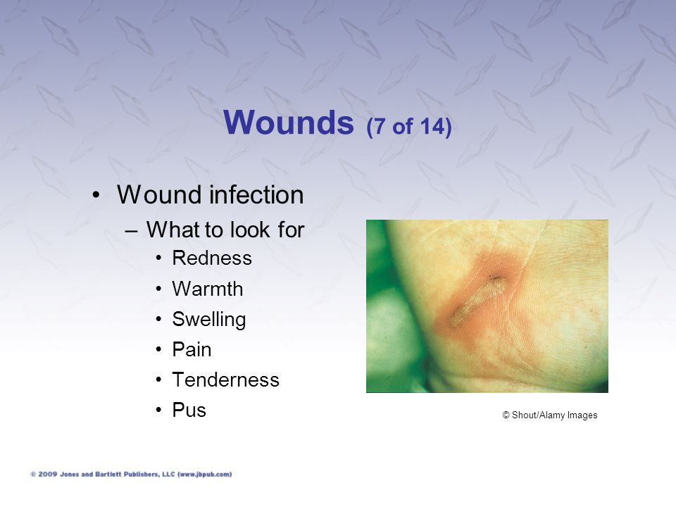 Wounds (7 of 14) Wound infection –What to look for Redness Warmth Swelling Pain Tenderness Pus © Shout/Alamy Images