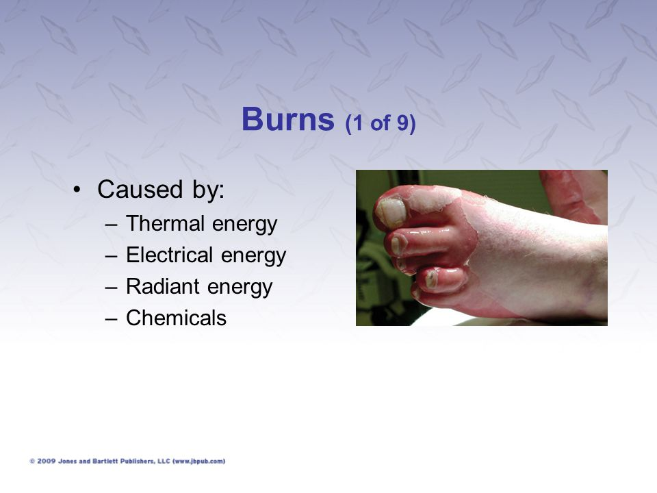 Burns (1 of 9) Caused by: –Thermal energy –Electrical energy –Radiant energy –Chemicals
