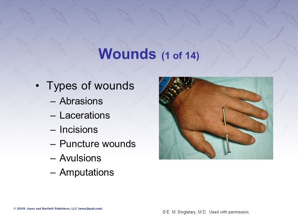 Wounds (1 of 14) Types of wounds –Abrasions –Lacerations –Incisions –Puncture wounds –Avulsions –Amputations © E. M. Singletary, M.D. Used with permis