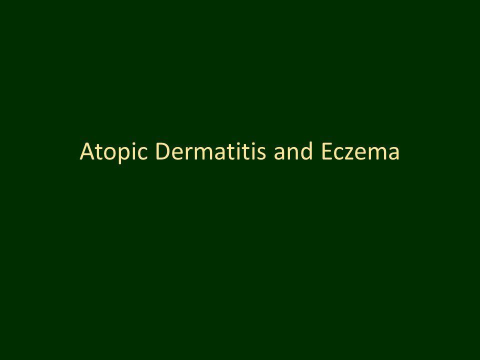 Atopic Dermatitis and Eczema