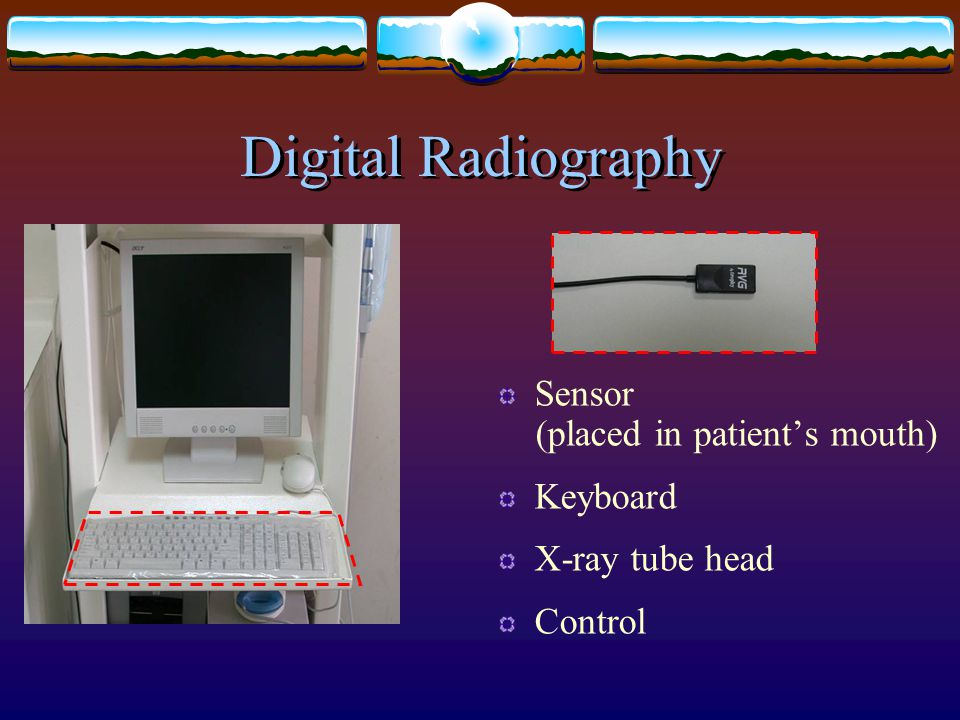 Digital Radiography Sensor (placed in patient's mouth) Keyboard X-ray tube head Control