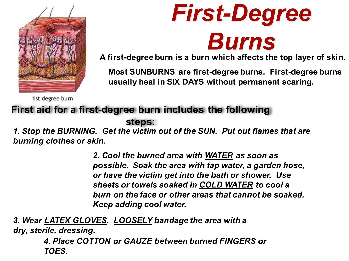 First-Degree Burns A first-degree burn is a burn which affects the top layer of skin. Most SUNBURNS are first-degree burns. First-degree burns usually