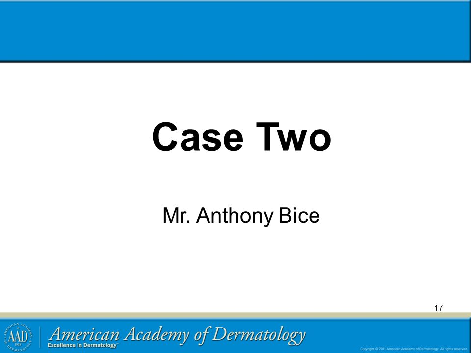 Case Two Mr. Anthony Bice 17
