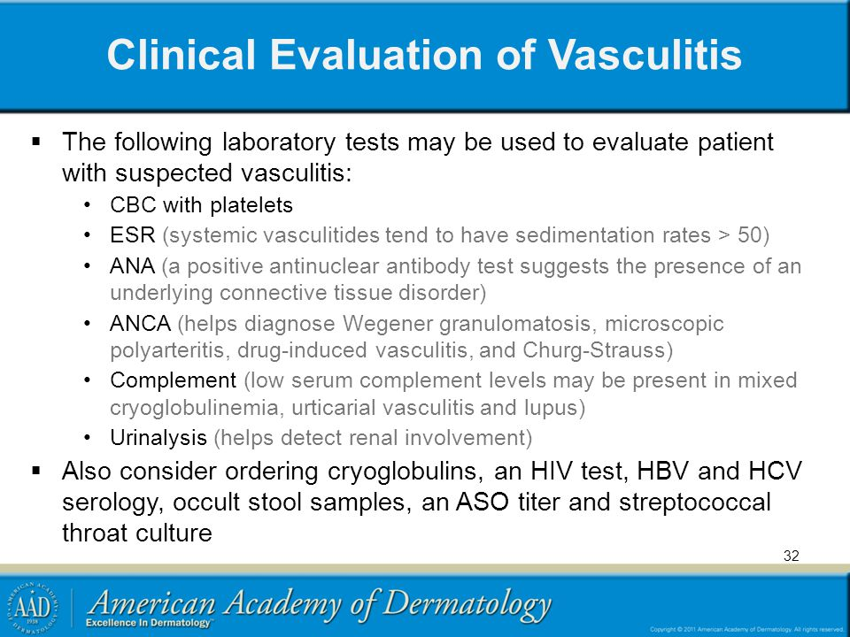 Clinical Evaluation of Vasculitis  The following laboratory tests may be used to evaluate patient with suspected vasculitis: CBC with platelets ESR (