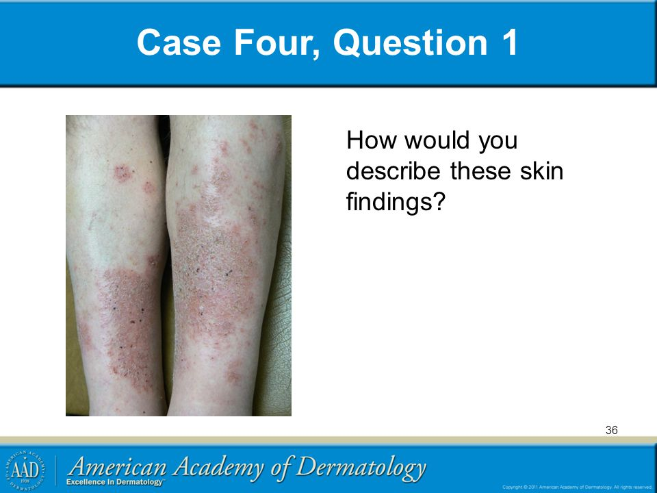 Case Four, Question 1 How would you describe these skin findings? 36