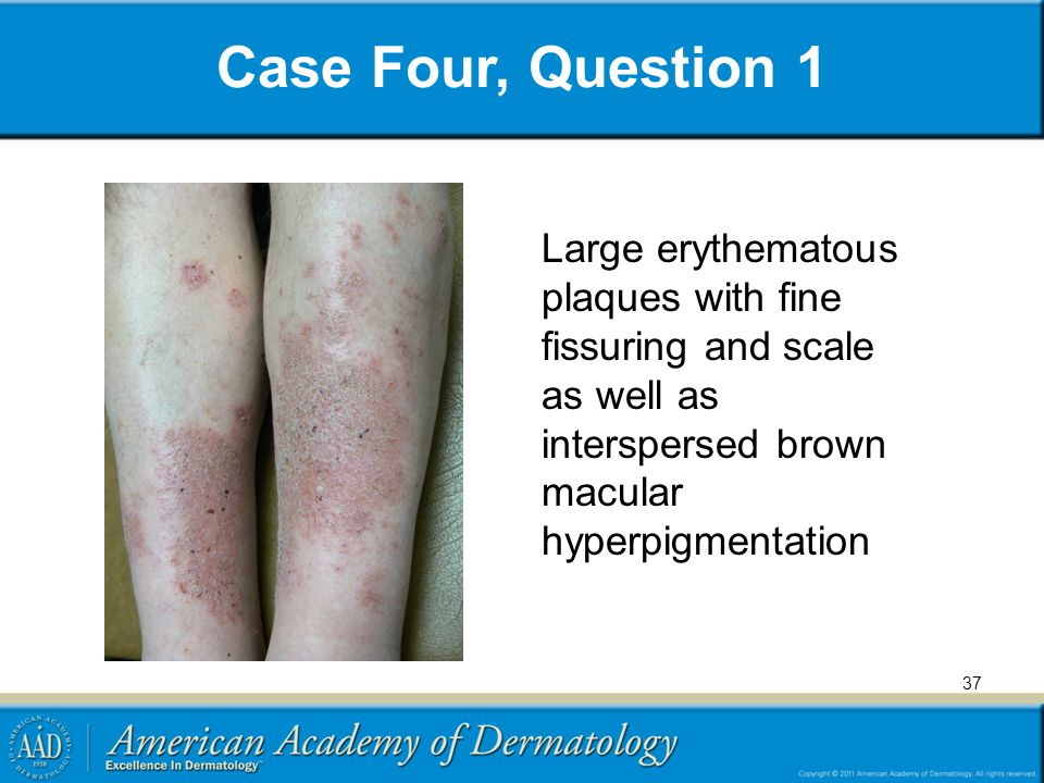 Case Four, Question 1 37 Large erythematous plaques with fine fissuring and scale as well as interspersed brown macular hyperpigmentation