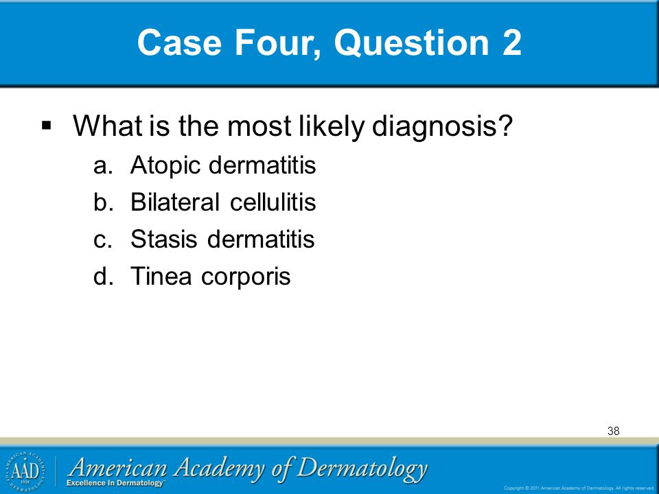 Case Four, Question 2  What is the most likely diagnosis? a.Atopic dermatitis b.Bilateral cellulitis c.Stasis dermatitis d.Tinea corporis 38