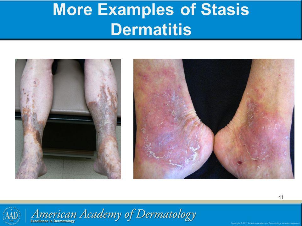 More Examples of Stasis Dermatitis 41