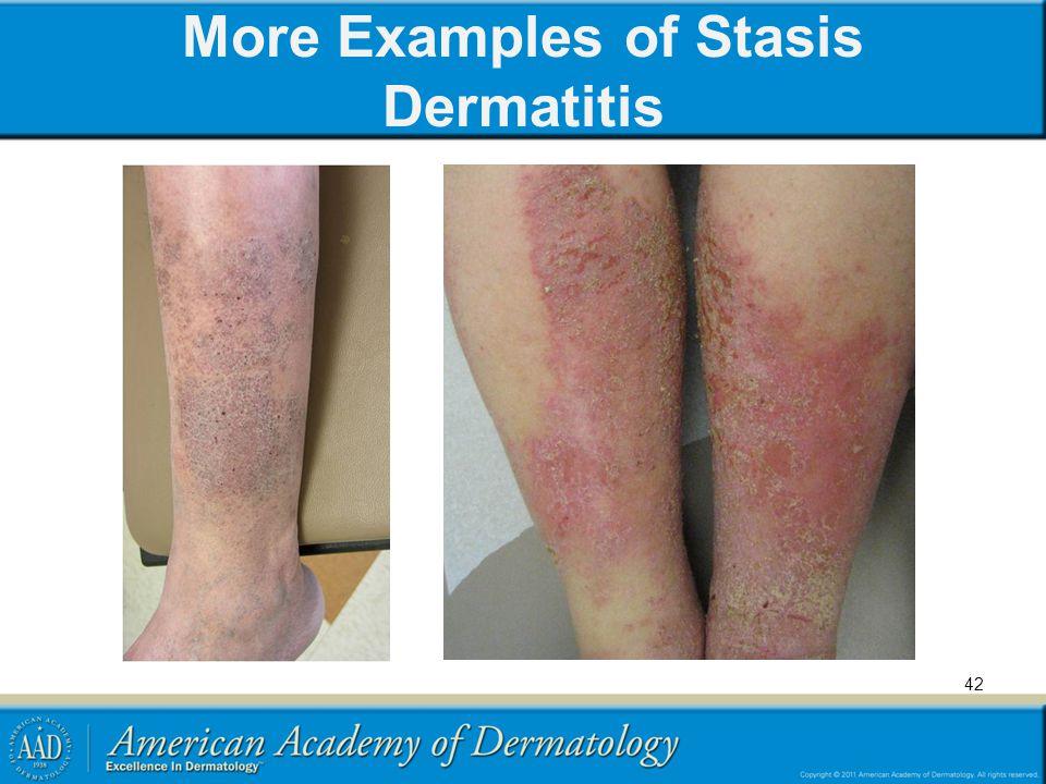 More Examples of Stasis Dermatitis 42