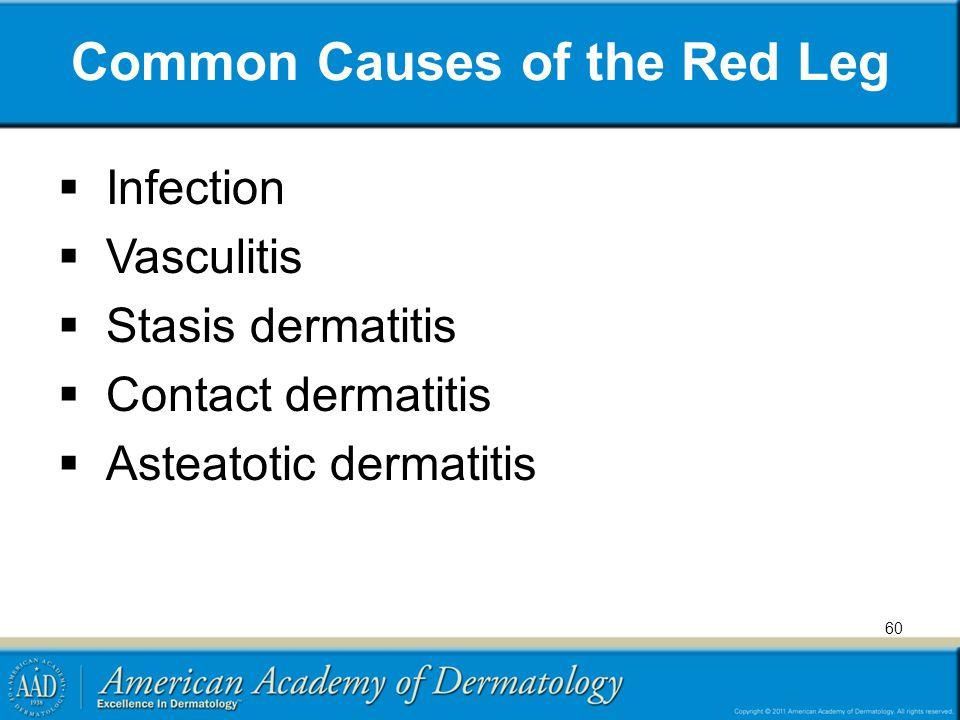 Common Causes of the Red Leg  Infection  Vasculitis  Stasis dermatitis  Contact dermatitis  Asteatotic dermatitis 60