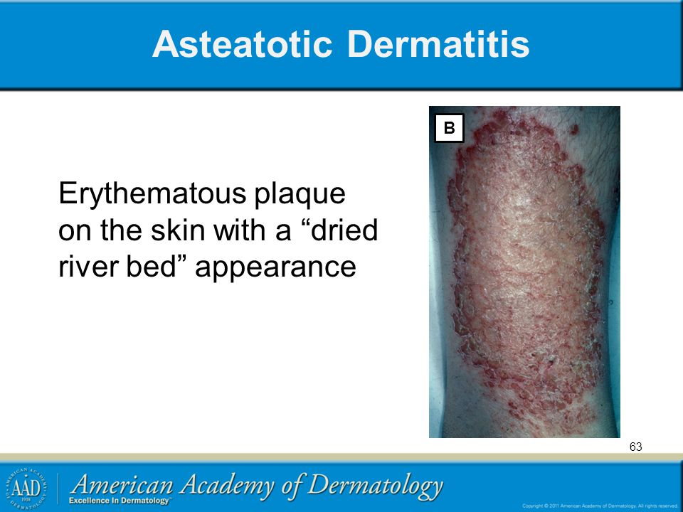 """Asteatotic Dermatitis B Erythematous plaque on the skin with a """"dried river bed"""" appearance 63"""
