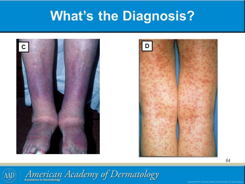 What's the Diagnosis? D 64 C