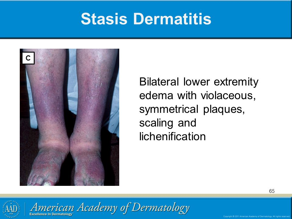 Stasis Dermatitis C Bilateral lower extremity edema with violaceous, symmetrical plaques, scaling and lichenification 65