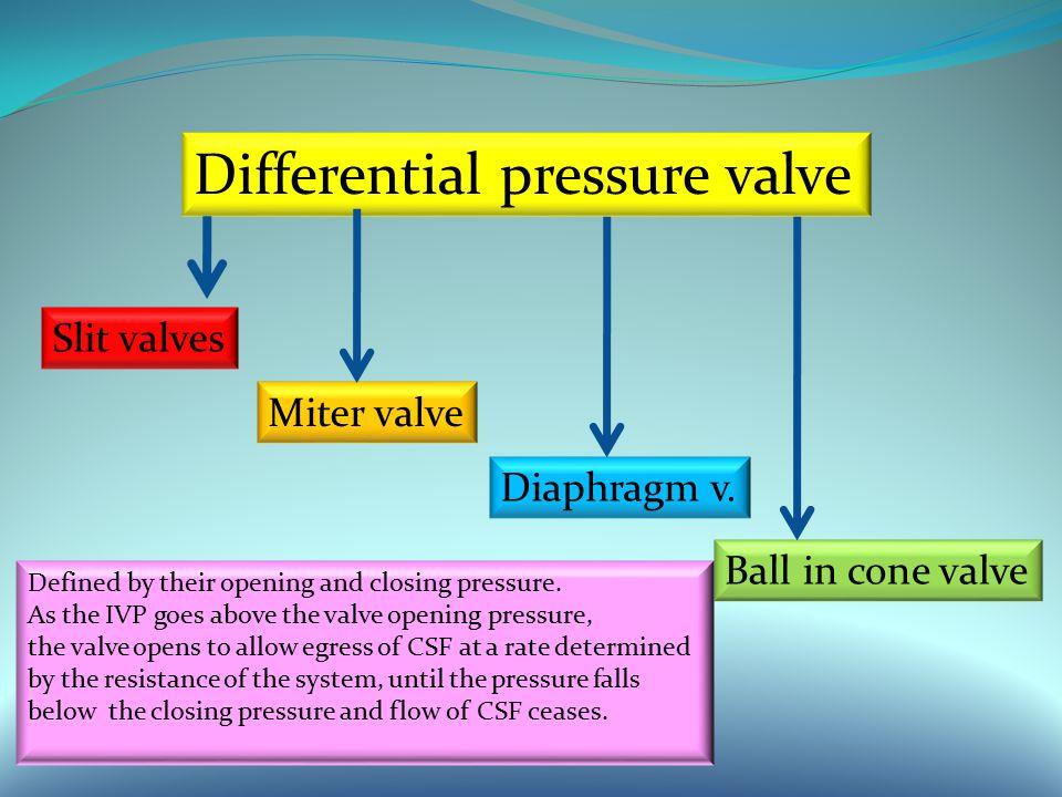 Differential pressure valve Slit valves Miter valve Diaphragm v.