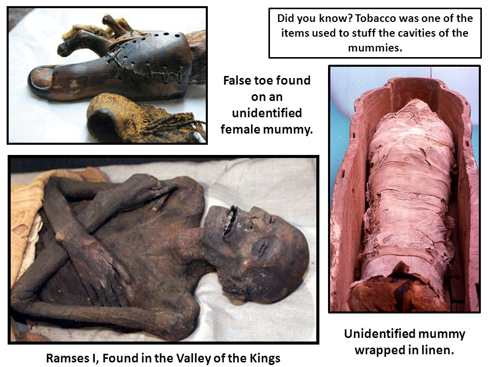 Unidentified mummy wrapped in linen.