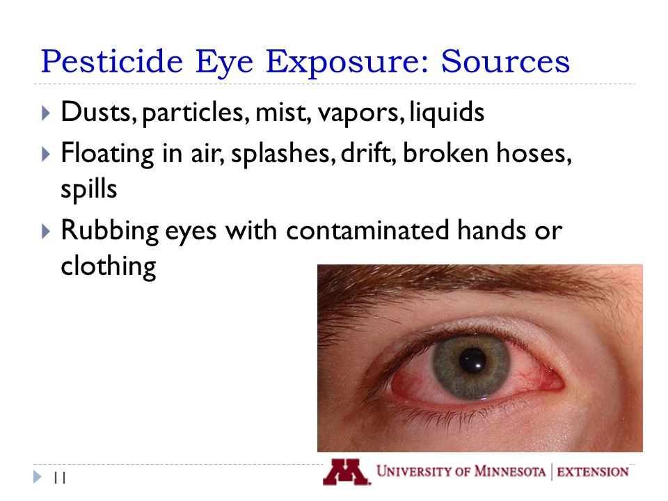 Pesticide Eye Exposure: Sources  Dusts, particles, mist, vapors, liquids  Floating in air, splashes, drift, broken hoses, spills  Rubbing eyes with contaminated hands or clothing 11