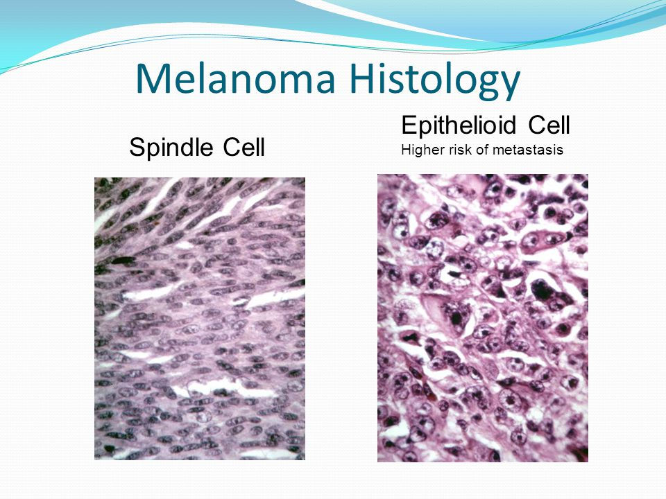 Melanoma Histology Spindle Cell Epithelioid Cell Higher risk of metastasis