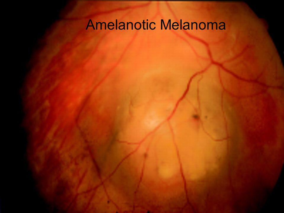 Amelanotic Melanoma
