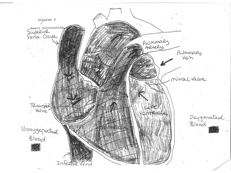 RE-DO Heart Surgeries If this is a second heart procedure will need an oscillating saw and anticipate crashing on bypass if injury is sustained upon opening of the sternum Scar formation/Adhesions of result in heart structures adhering to the sternum making them susceptible to being injured with mediansternotomy Generally femoral cannulation for CPB is used in these circumstances to avoid such an event allowing patient to be ON BYPASS before the sternum is opened