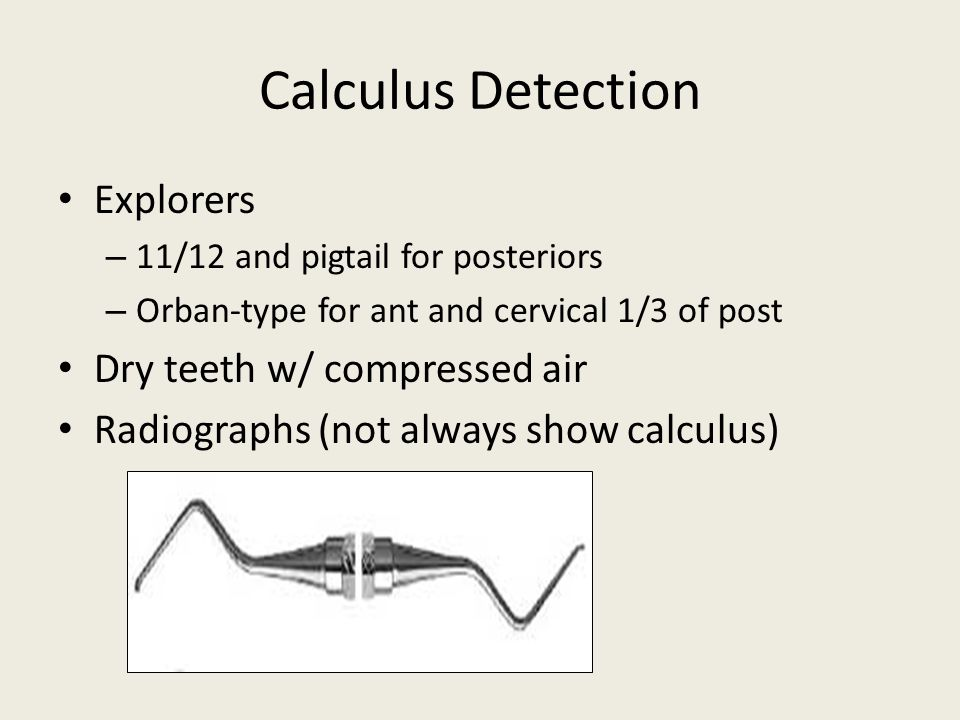 Calculus Detection Explorers – 11/12 and pigtail for posteriors – Orban-type for ant and cervical 1/3 of post Dry teeth w/ compressed air Radiographs (not always show calculus)