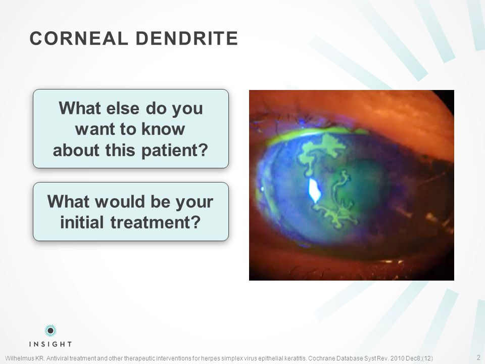 CORNEAL DENDRITE What else do you want to know about this patient.