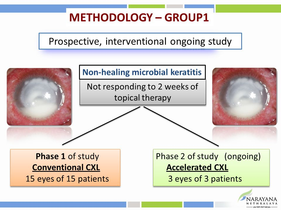 Non-healing microbial keratitis Phase 1 of study Conventional CXL 15 eyes of 15 patients Phase 1 of study Conventional CXL 15 eyes of 15 patients Phase 2 of study (ongoing) Accelerated CXL 3 eyes of 3 patients Phase 2 of study (ongoing) Accelerated CXL 3 eyes of 3 patients Not responding to 2 weeks of topical therapy ongoing Prospective, interventional ongoing study METHODOLOGY – GROUP1